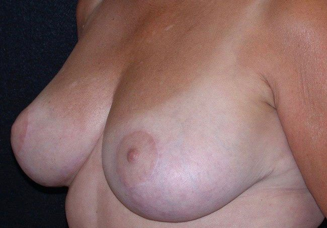 After-Breast Reduction Case 2