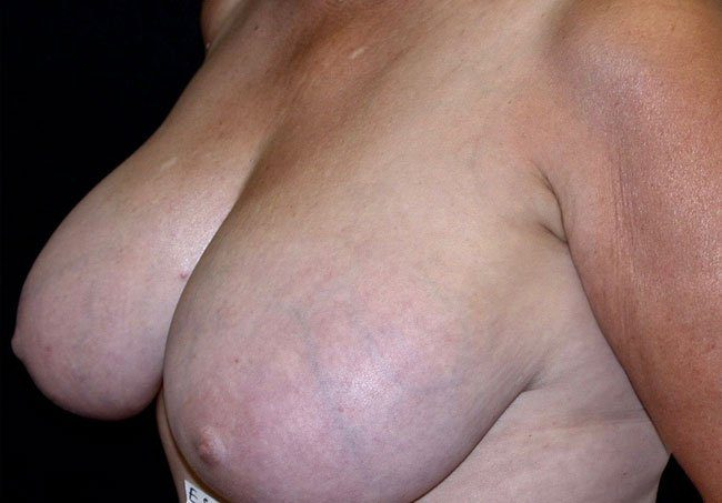 Before-Breast Reduction Case 2