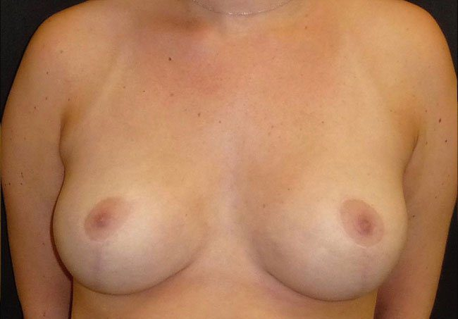 After-Breast Reduction Lollipop Technique