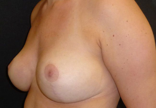 After-Breast Reduction Surgery