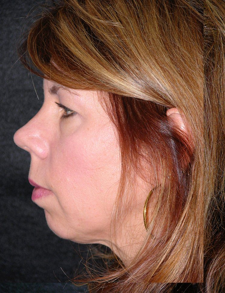 Before-Chin Augmentation Case 2