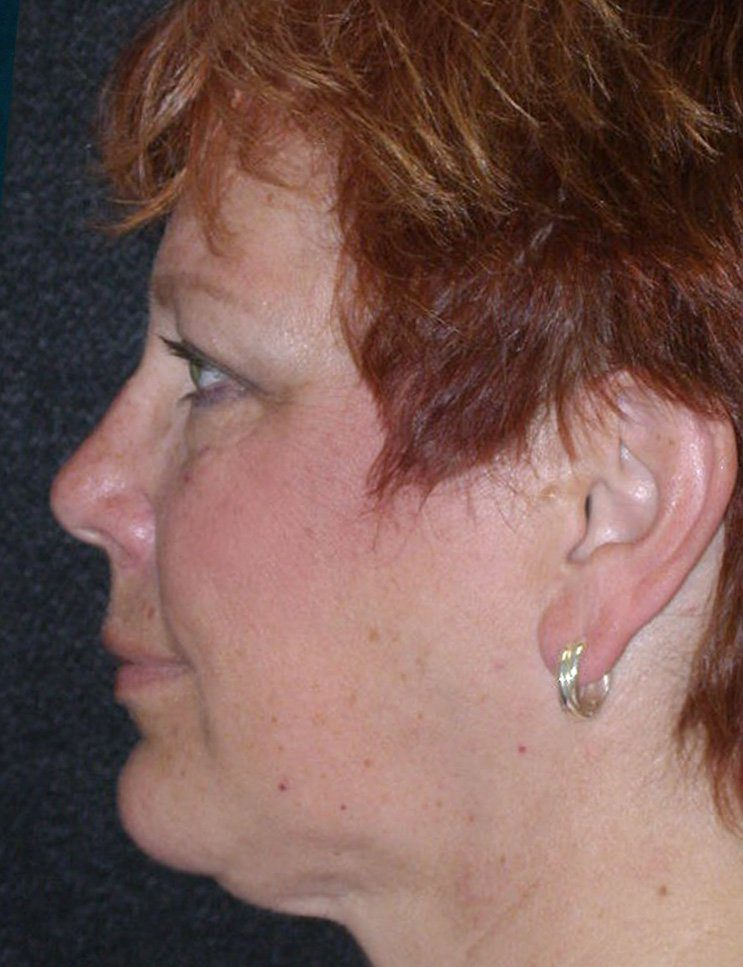 After-Chin Augmentation Case 1