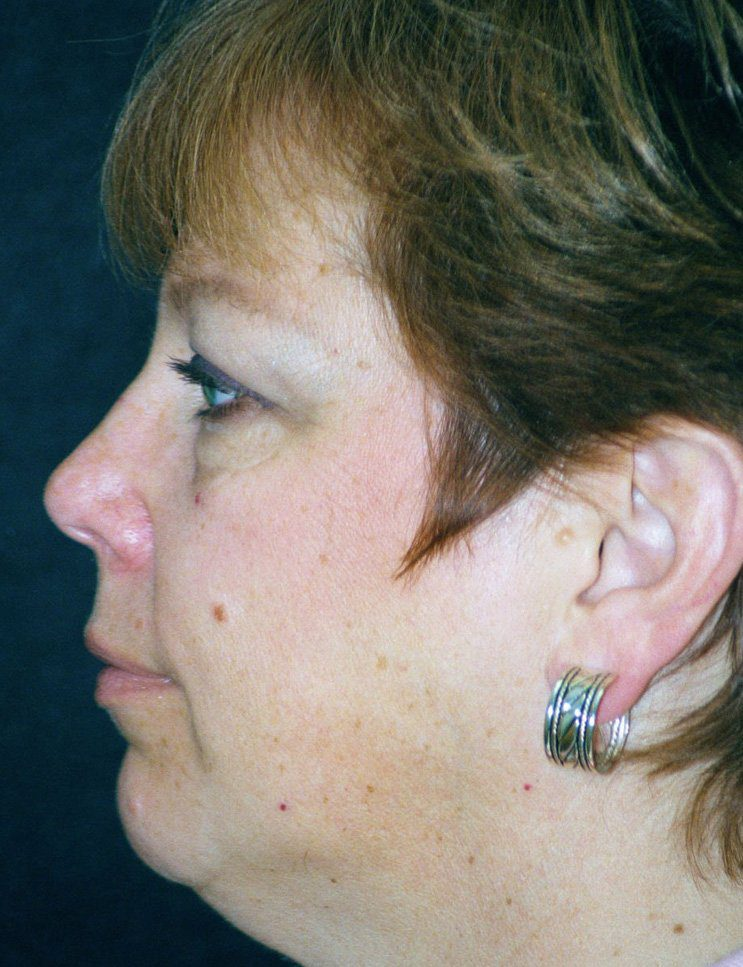 Before-Chin Augmentation Case 1