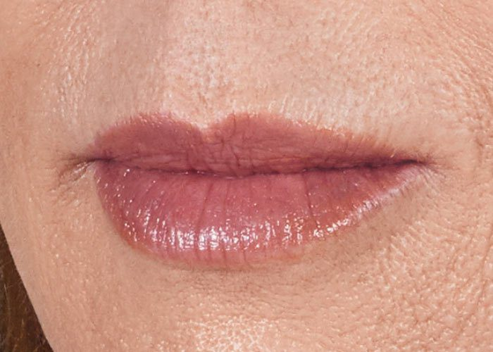 After-Lip Injection Case 1 Close up
