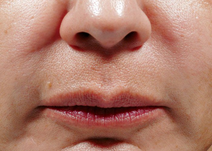 After-Bellafill Nasolabial Folds Patient 1