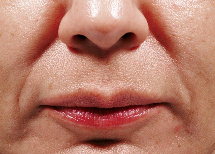 Before-Bellafill Nasolabial Folds Patient 1