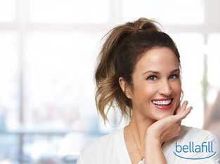 Bellafill® for Acne Scars and Nasolabial Folds