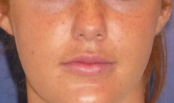 After-Lip Injection Young Woman