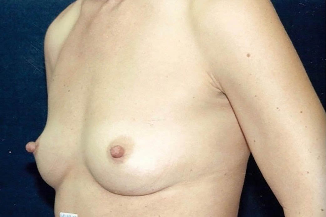 Before-Breast Augmentation 3