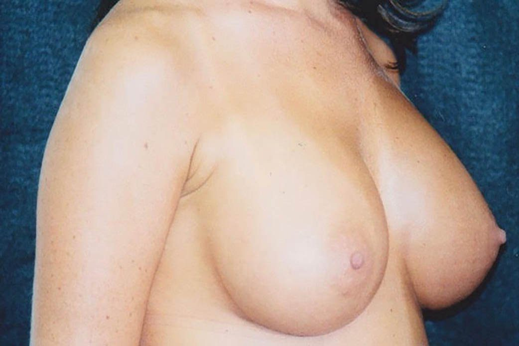 After-Breast Augmentation 5